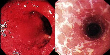 Ulcerozni kolitis (slike sa kolonoskopije)
